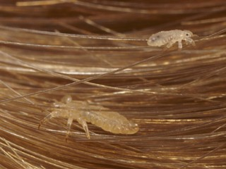 Head-lice-top